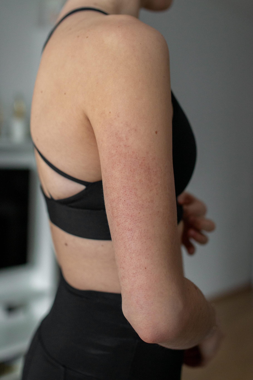 Laserbehandlung bei Reibeisenhaut (Keratosis Pilaris) auf dem österreichischen Lifestyle Blog Bits and Bobs by Eva. Mehr zu Gesundheits-Themen hier.